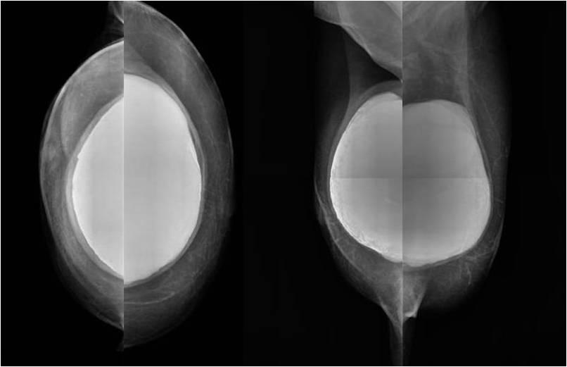 Información previa a la mamografía para mujeres portadoras de prótesis mamarias