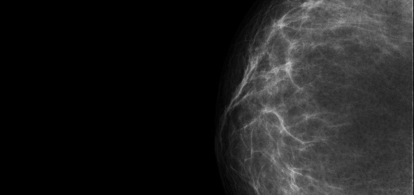 Todo lo que debes saber sobre las mamografías